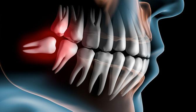 chirurgia-dentista-casotto-niguarda-milano