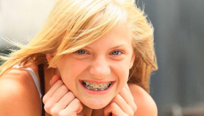 ortodonzia-dentista-casotto-niguarda-milano